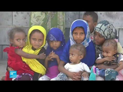 شاهد الأمم المتحدة تؤكّد أن الأزمة الإنسانية في اليمن هي الأسوأ في العالم