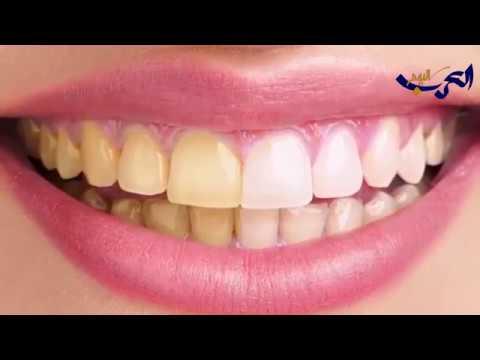 شاهد وسائل بسيطة لحماية أسنانك من التسوس