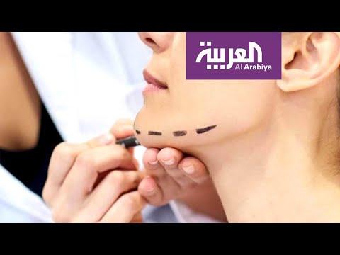 شاهد زراعة الفك جراحيًا وتجميليًا مع الدكتور نادر صعب