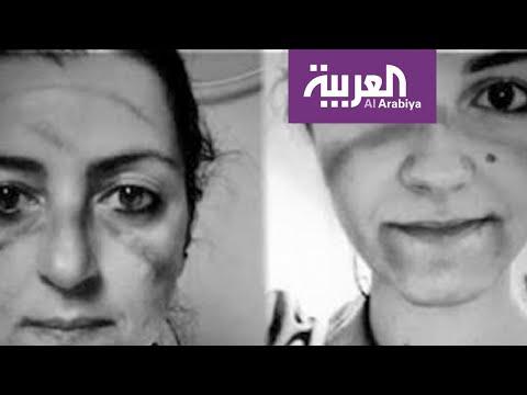 شاهد صور هزت مواقع التواصل لأطباء خارت قواهم في معركة كورونا